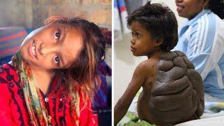 САМЫЕ НЕОБЫЧНЫЕ И СТРАННЫЕ ДЕТИ В МИРЕ. Топ 10 самых необычных детей на планет.